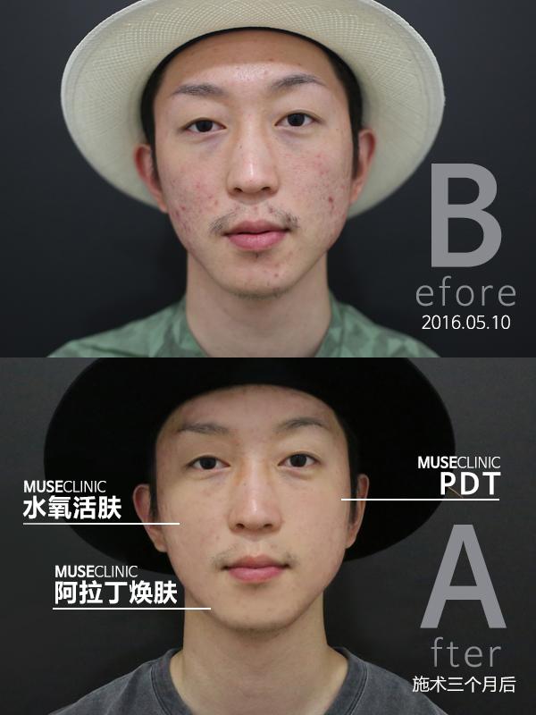 김지훈_아쿠아필+PDT+알라딘필.jpg